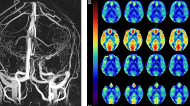 Schrage blood flow research